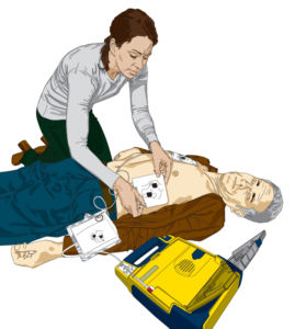 Diagram of woman using AED